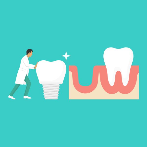 How Does The Jawbone Affect The Ability To Get Dental Implants?