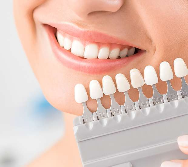 Hackensack Dental Veneers and Dental Laminates