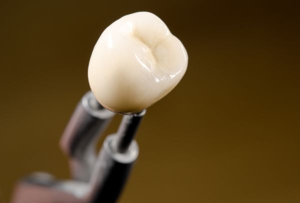 Reasons To Consider Implant Crowns To Replace Missing Teeth