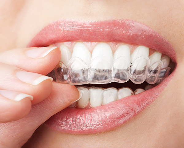 Why You Should Visit An Invisalign® Dentist Office